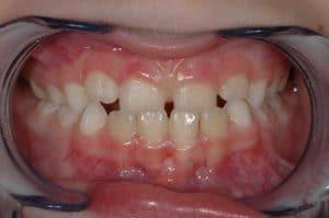 Les dents d'Alexandre au début du traitement OSB.