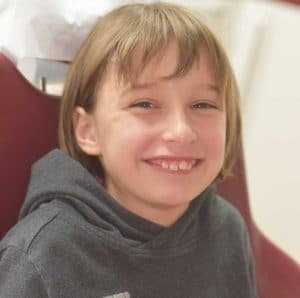 Photo du visage de Charline au début du traitement OSB.