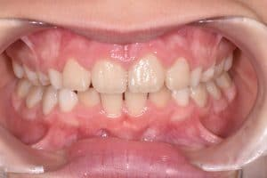 Les dents de Charline au début du traitement OSB.