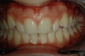 Les dents de Claire après 16 mois de traitement OSB.