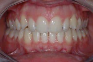 Les dents de Claire après 36 mois de traitement OSB.