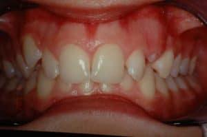 Les dents de Claire au début du traitement OSB.