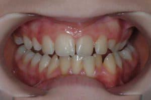 Les dents de Maelle au début du traitement OSB.