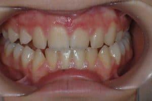 Les dents de Maelle après un an de traitement OSB.
