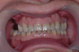 Les dents de Marie-France lors de son premier rendez-vous.