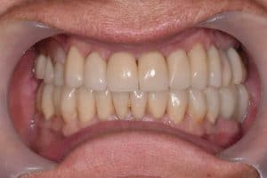 Les dents de Marie-Claude quand le traitement avec les activateur a été achevé.