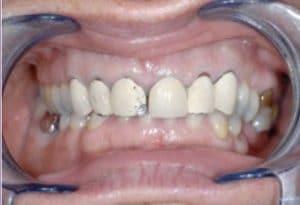 Les dents de Marie-France avant traitement.