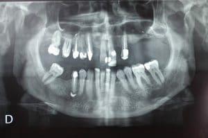 Radio dents de Rémi à la fin du traitement.