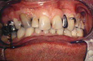 La dentition de Rémi avant traitement.